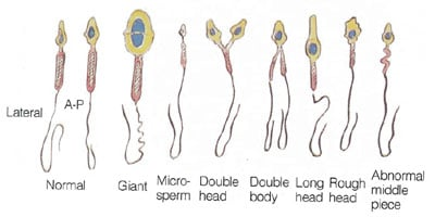 Opinion Heathy sperm cells